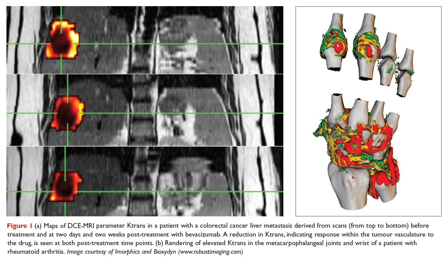 Figure 1 Maps of DCE-MRI parameter Ktrans in a patient with a colorectal cancer liver metastasis derived from scans