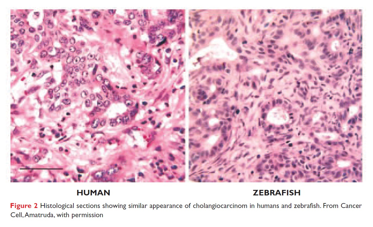 Figure 2 Histological sections showing similar appearance of cholangiocarcinom in humans and zebrafish
