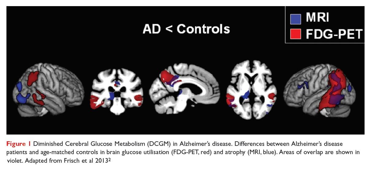 Figure 1 Diminished Cerebral Glucose Metabolism (DCGM) in Alzheimer's disease