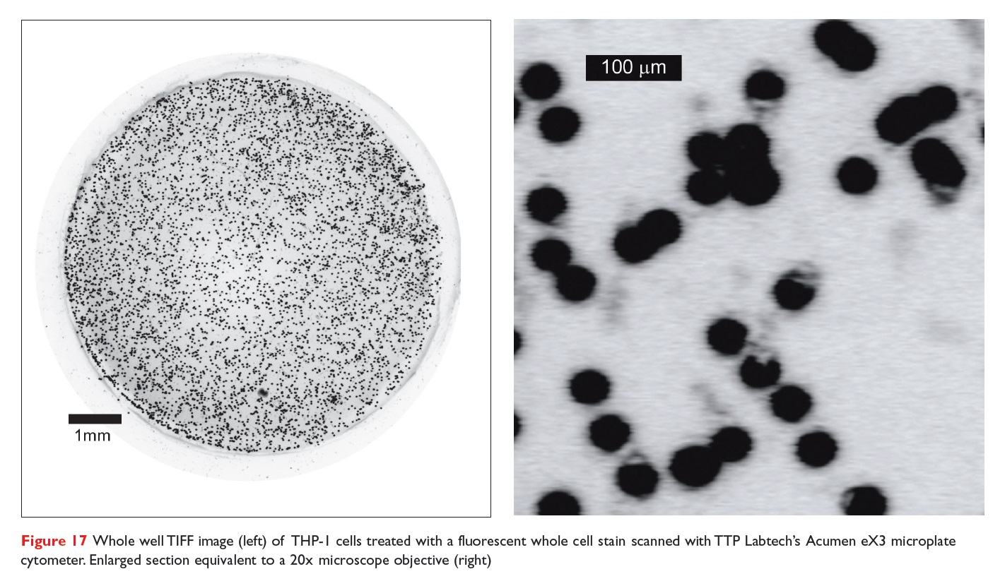 Figure 17 Whole well TIFF image of THP-1 cells treated with a fluorescent whole cell stain scanned with TTP's Acumen eX3 microplate cytometer