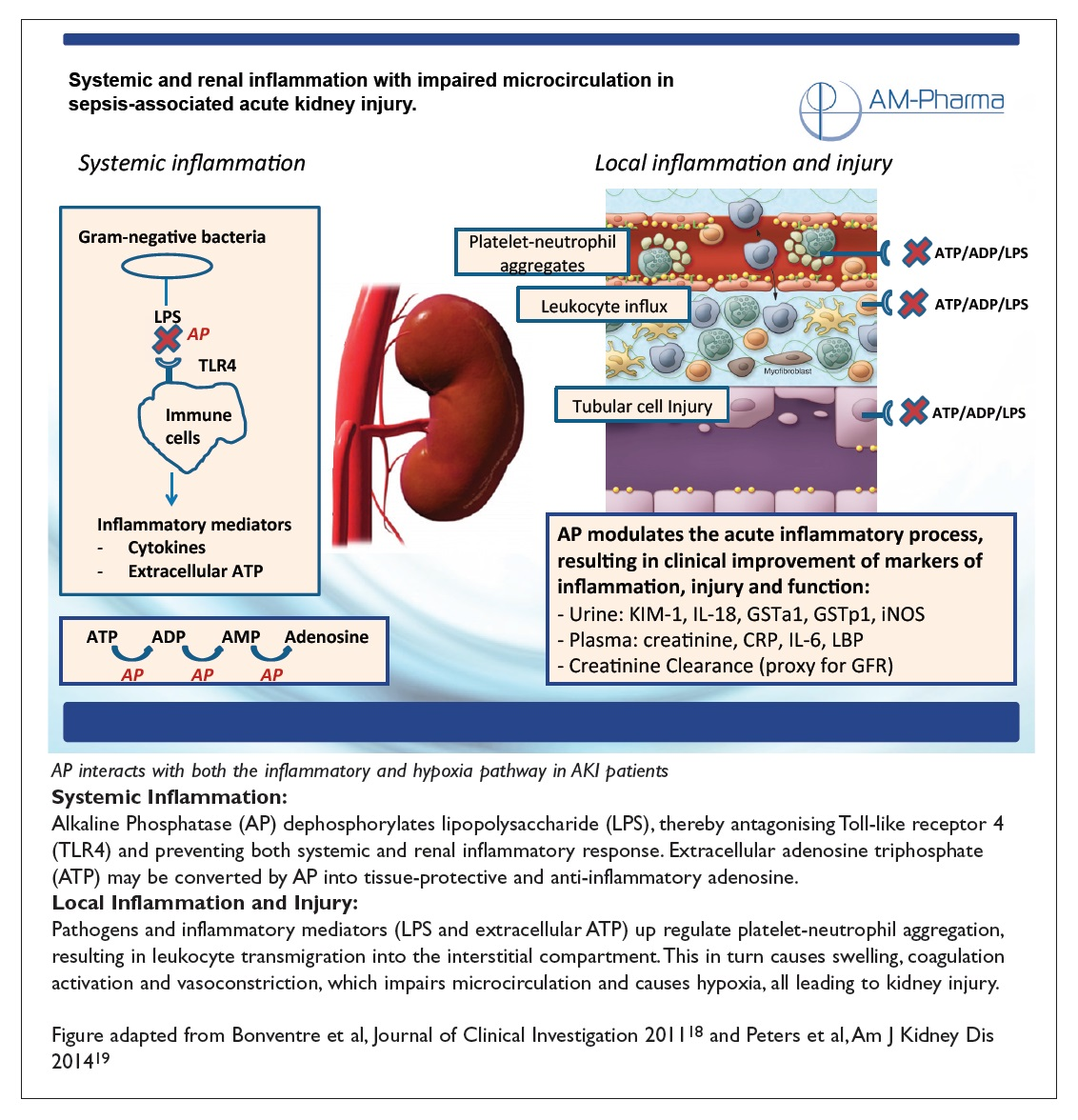 Figure 2 Systemic and renal inflammation with impaired microcirculation in sepsis-associated acute kidney injury