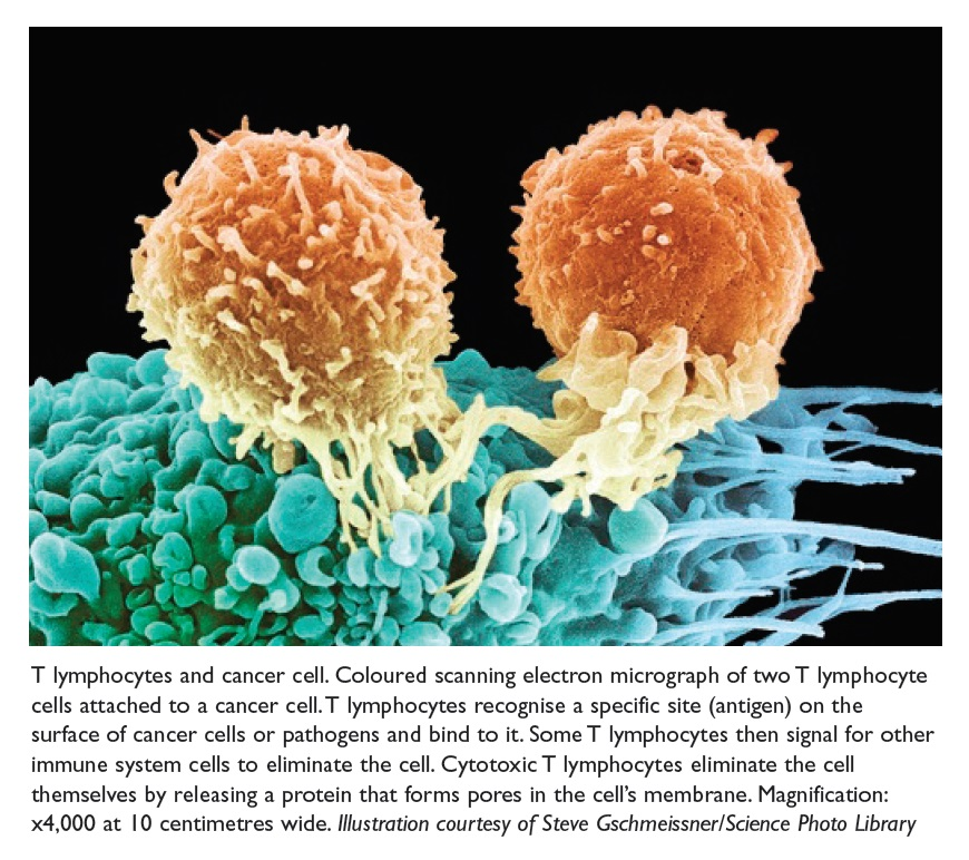 Figure 2 T lymphocytes and cancer cell. Coloured scanning electron micrograph of two T lymphocyte cells attached to a cancer cell