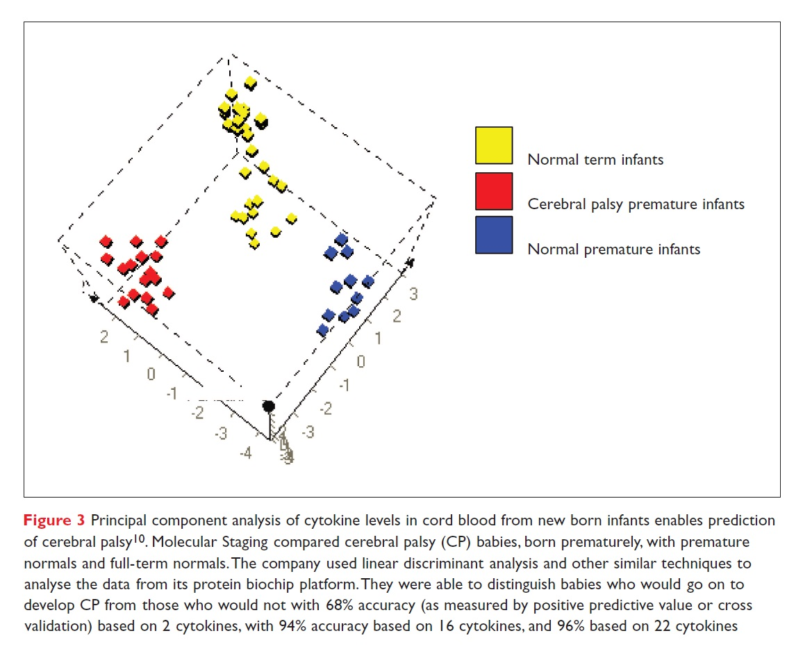 Figure 3 Principal component analysis of cytokine levels in cord blood from new born infants enables prediction of cerebral palsy