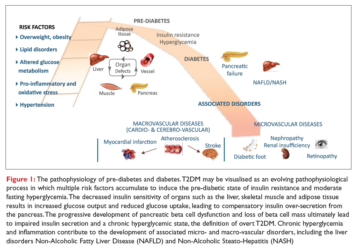 Figure 1 The pathophysiology of pre-diabetes and diabetes