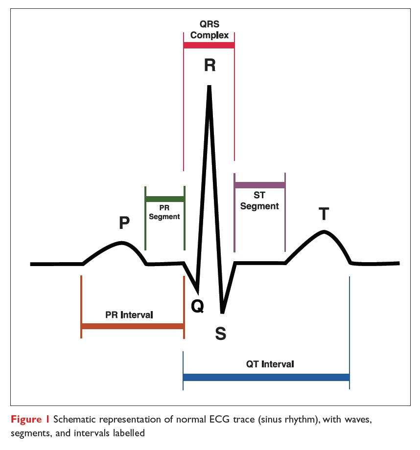 Figure 1 Schematic representation of normal ECG trace (sinus rhythm), with waves, segments, and intervals labelled