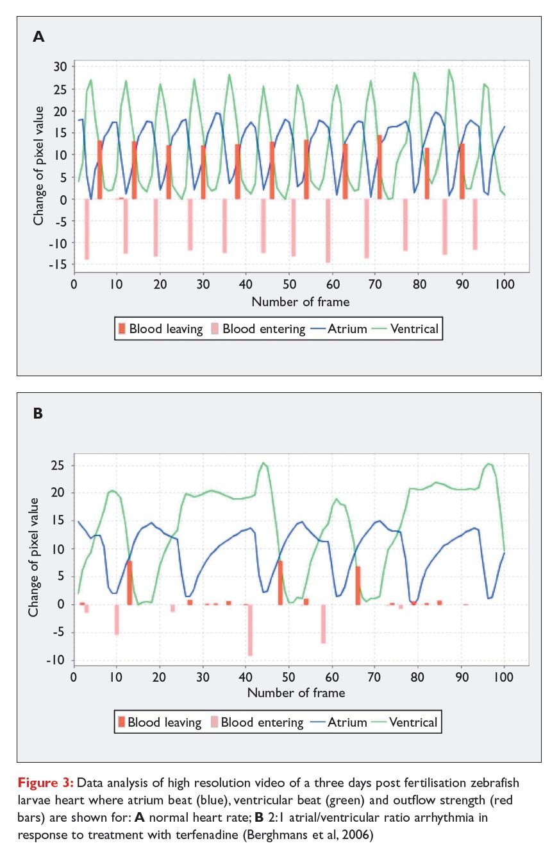 Figure 3 Data analysis of high resolution video of a three days post fertilisation zebrafish larvae heart