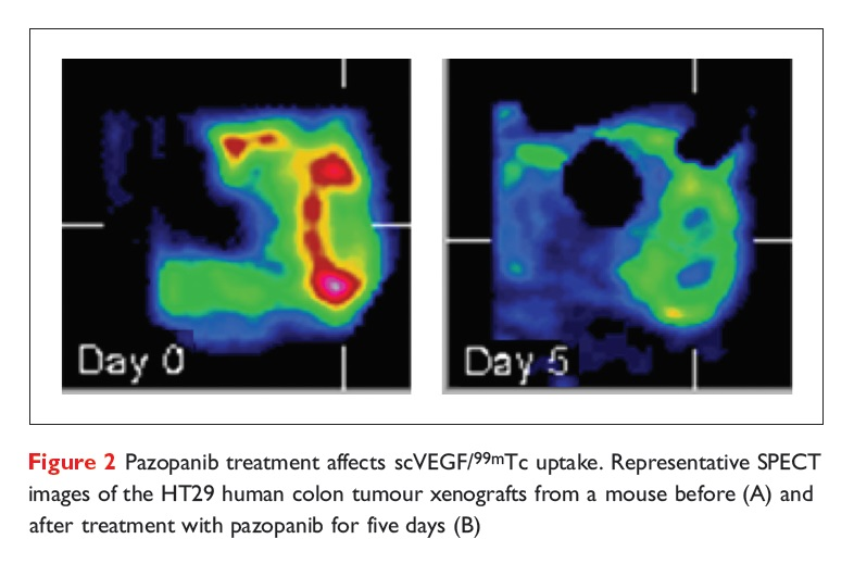 Figure 2 Pazopanib treatments affects scVEGF/99mTc uptake