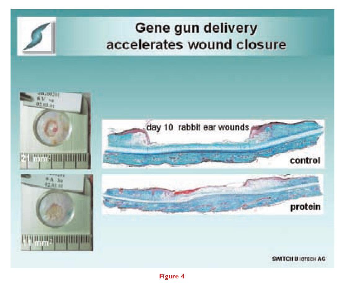 Figure 4 Gene gun delivery accelerates wound closure