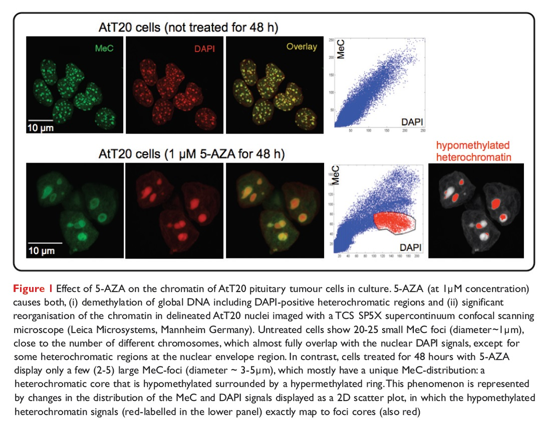 Figure 1 Effect of 5-AZA on the chromatin of AtT20 pituitary tumour cells in culture
