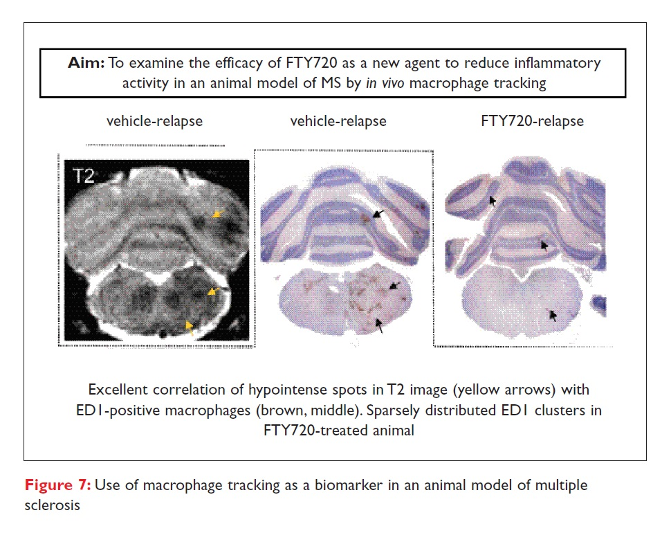Figure 7 Use of macrophage tracking as a biomarker in an animal model of multiple sclerosis