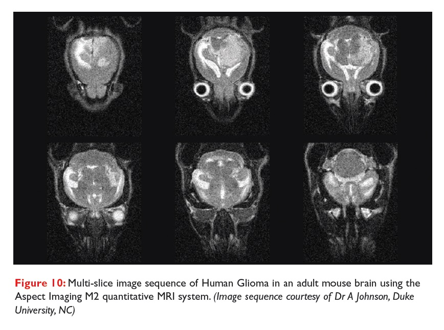 Figure 10 Multi-slice image sequence of Human Glioma in an adult mouse brain using the Aspect Imaging M2 quantitative MRI system