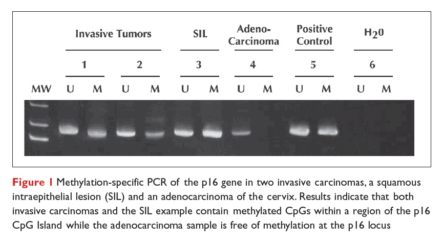 Figure 1 Methylation-specific PCR of the p16 gene in two invasive carcinomas