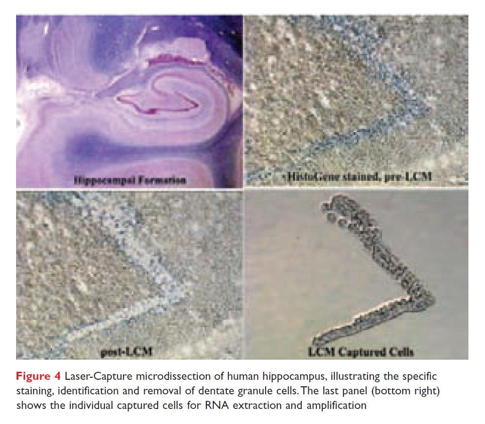 Figure 4 Laser-capture microdissection of human hippocampus