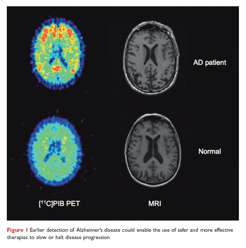 Figure 1 Earlier detection of Alzheimer's disease could enable the use of safer and more effective therapies to slow or halt disease progression