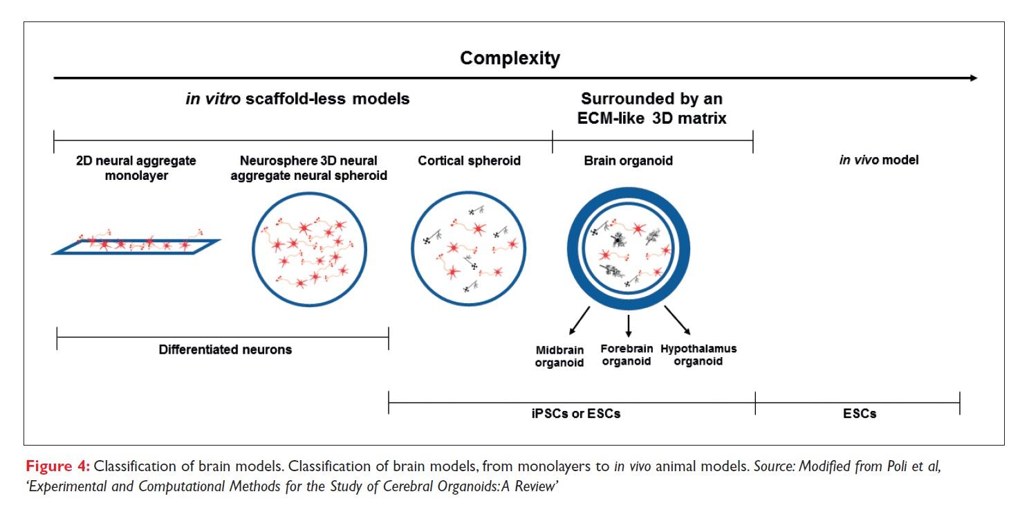 Figure 4 Classification of brain models