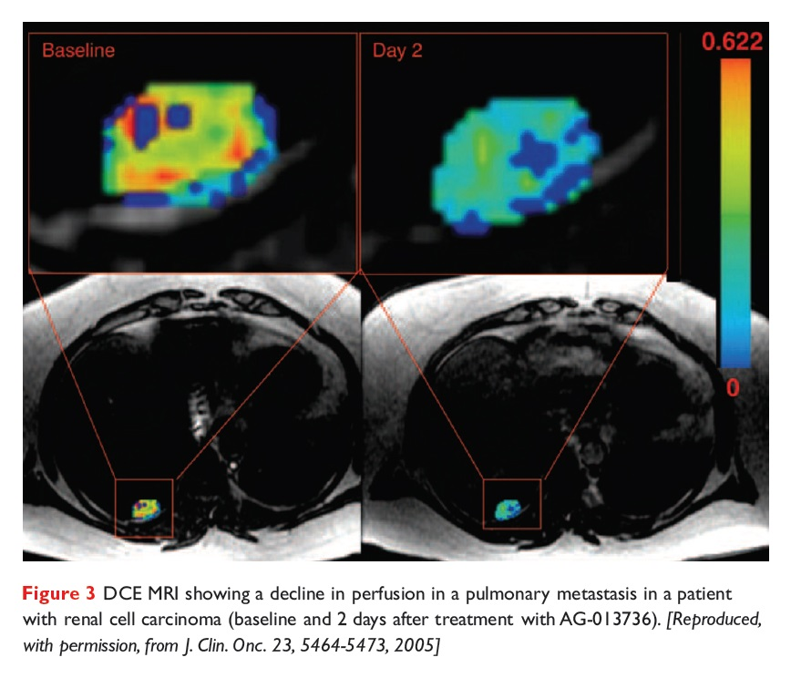 Figure 3 DCE MRI showing a decline in perfusion in a pulmonary metastasis in a patient with renal cell carcinoma