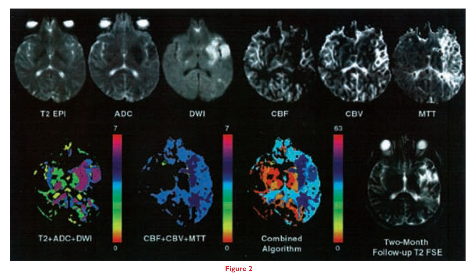 Figure 2 Comparisons of different MRI parameters in a human stroke patient