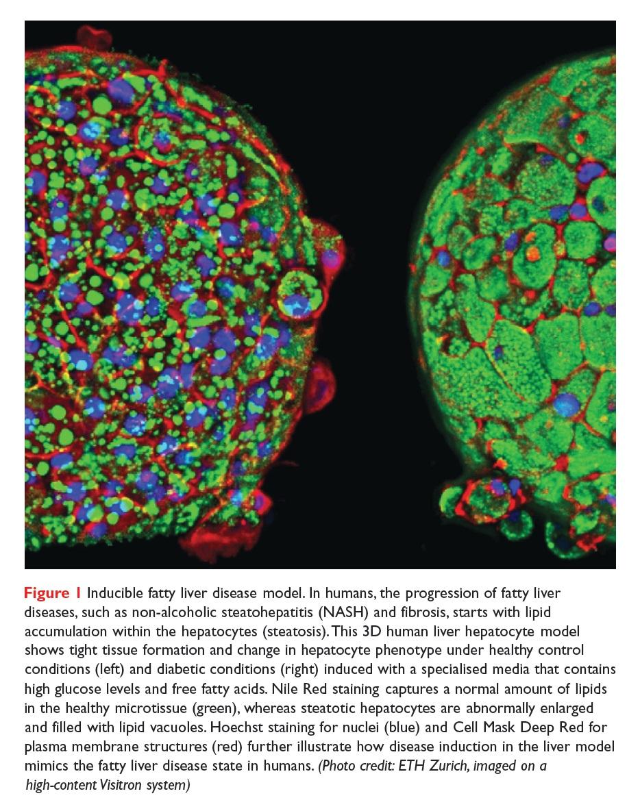 Figure 1 Inducible fatty liver disease model
