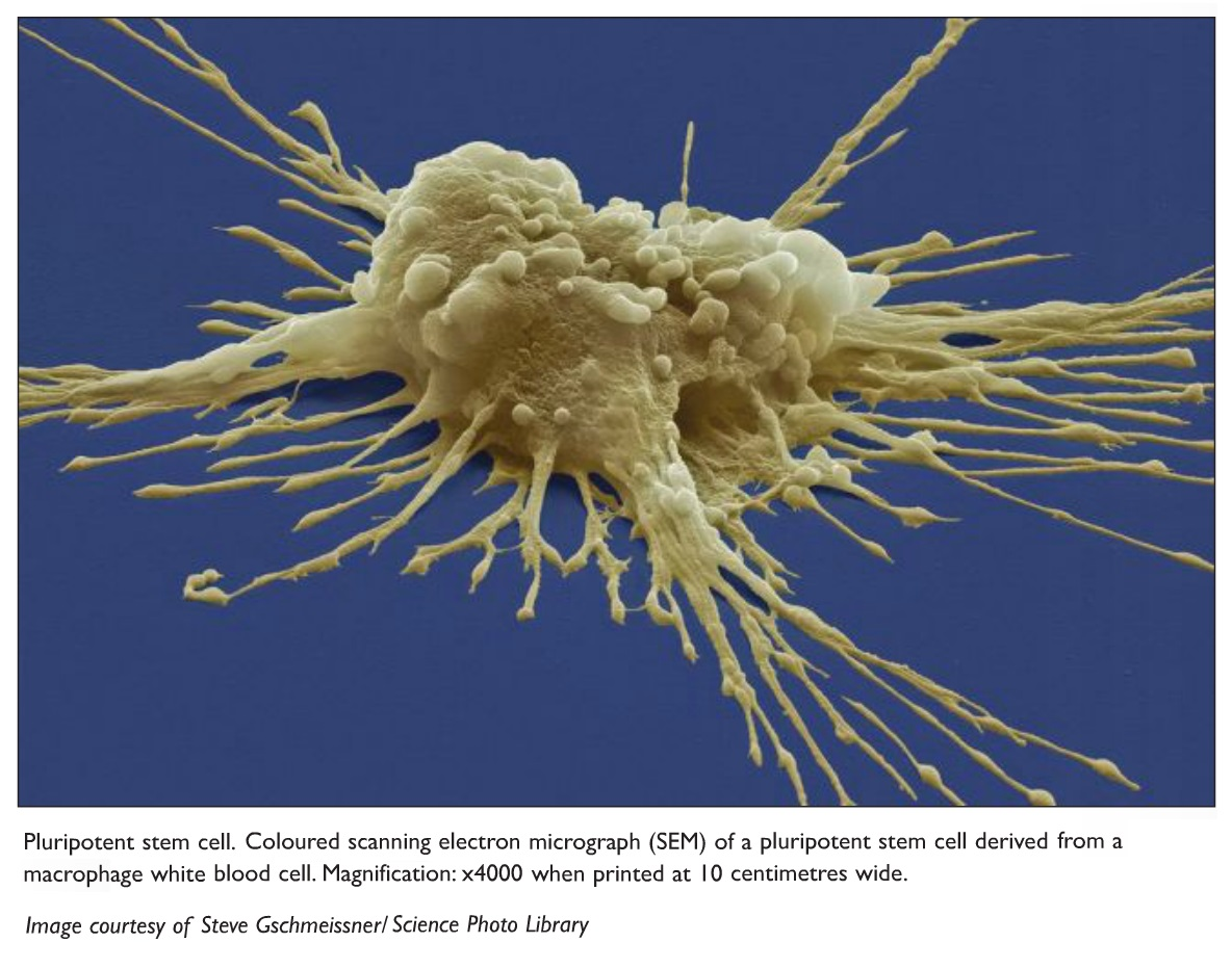 Image 2 Pluripotent stem cell. Coloured scanning electron micrograph (SEM) of a pluripotent stem cell derived from a macrophage white blood cell