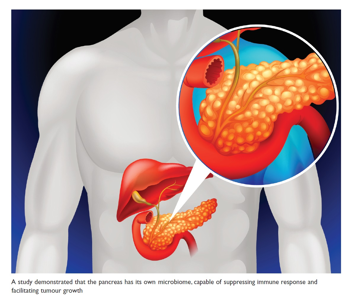 Figure 1 A study demonstrated that the pancreas has its own microbiome