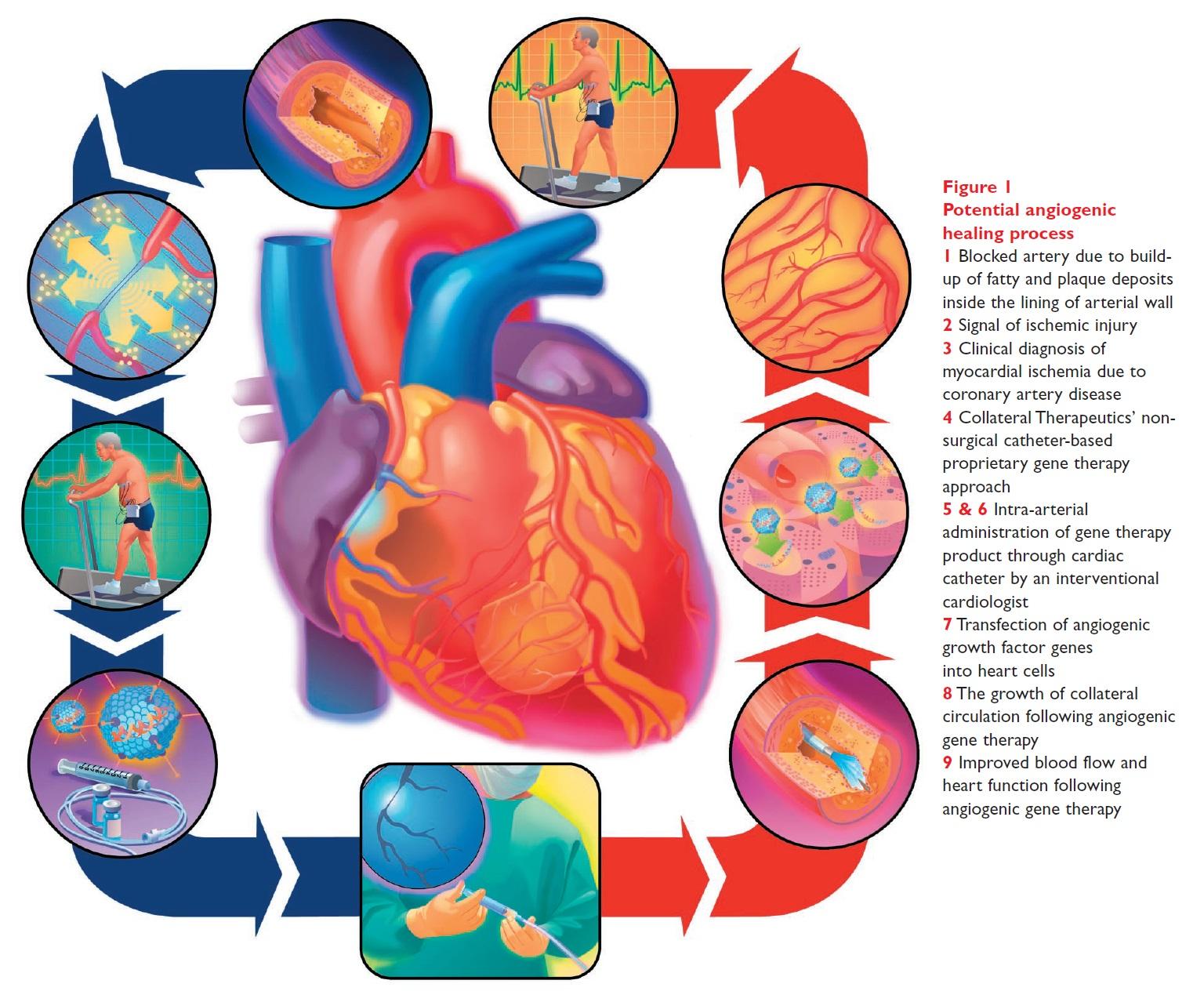 Figure 1 Potential angiogenic healing process