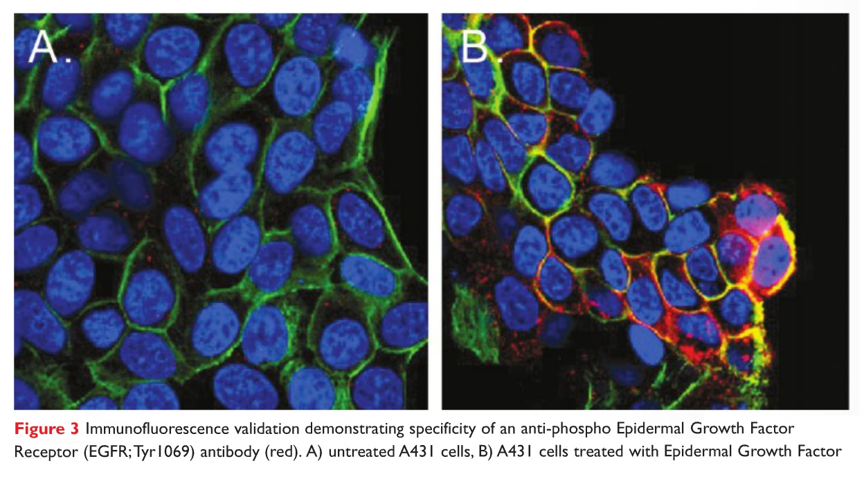 Figure 3 Immunofluorescence validation demonstrating specificity of an anti-phospho Epidermal Growth Factor