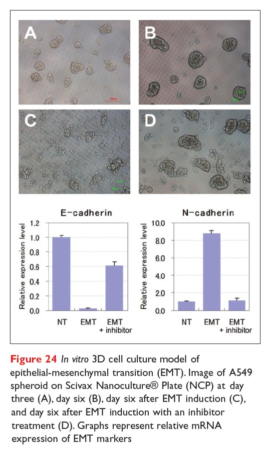 Figure 24 In vitro 3D cell culture model of epithelial-mesenchymal transition (EMT)