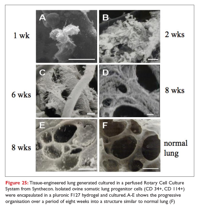 Figure 25 Tissue-engineered lung generated cultured in a perfused Rotary Cell Culture System from Synthecon