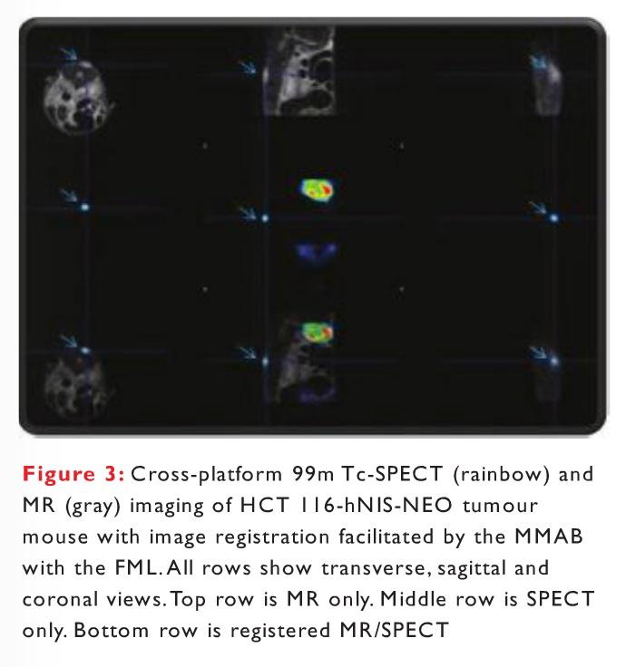 Figure 3 Cross-platform 99m Tc-SPECT (rainbow) and MR (gray) imaging of HCT 116-hNIS-NEO tumour mouse