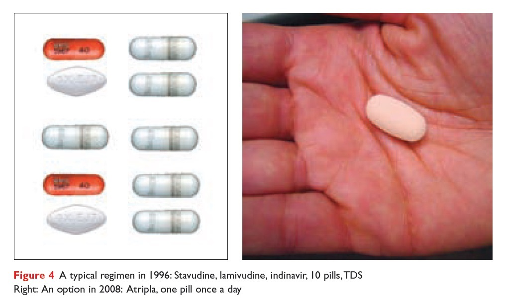 Figure 4 A typical regimen in 1996, stavudine, lamivudine, indinavir, 10 pills, and the 1 pill option of Atripla in 2008