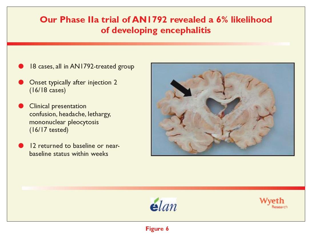 Figure 6 The phase IIa trial of AN1792 revealed a 6% likelihood of developing encephalitis