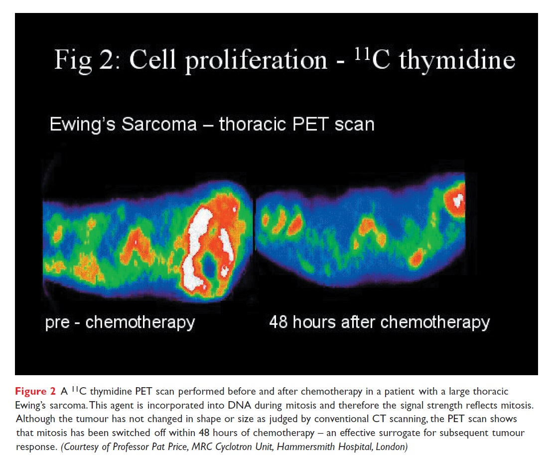 Figure 2 A 11C thymidine PET scan performed before and after chemotherapy in a patient with large thoracic Ewing's sarcoma