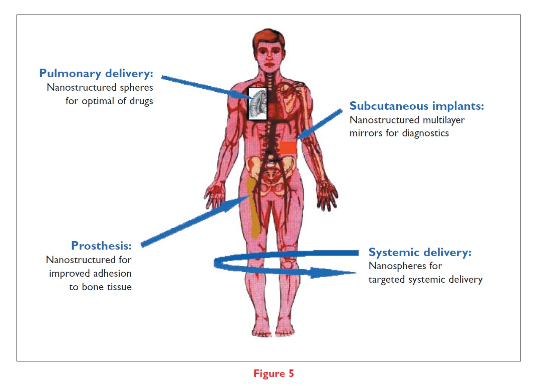 Figure 5 Pulmonary delivery, subcutaneous implants, prosthesis, and systemic delivery