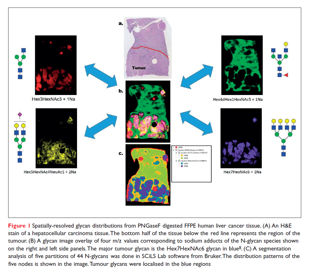 Figure 1 Spatially-resolved glycan distributions from PNGaseF digested FFPE human liver cancer tissue