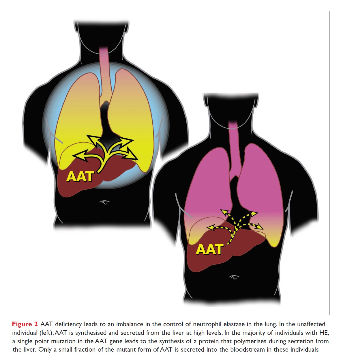 Figure 2 AAT deficiency leads to an imbalance in the control of neutrophil elastase in the lung